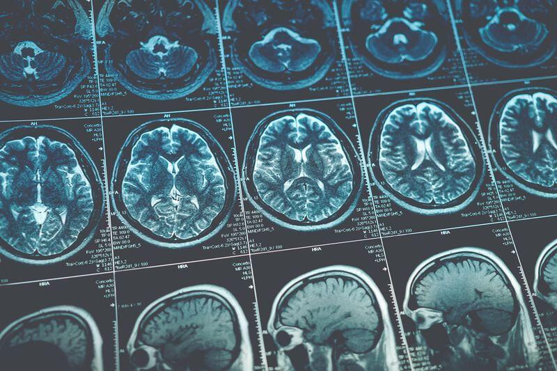 Brain Injury Claims Lawyer Denver Colorado.