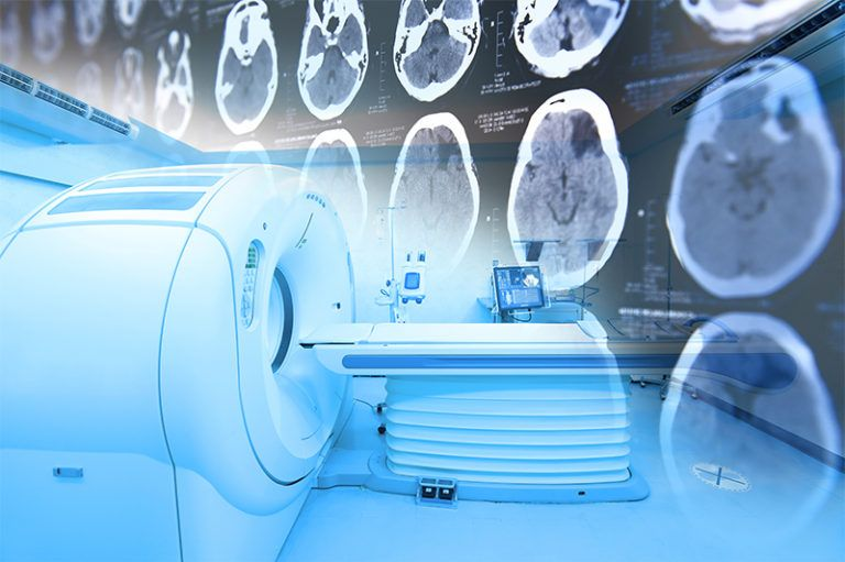 Neuroimaging, Neuroradiology, And MRI Scanner Brain Injury And Concussion Attorneys Denver Colorado.