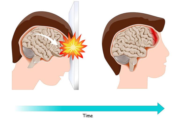 Traumatic Brain Injury With No Symptoms.